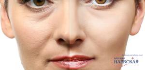 Коррекция слезной борозды фото до и после