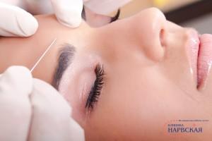 metod kanyuli v kosmetologii