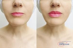 Увеличение губ фото до и после (2)